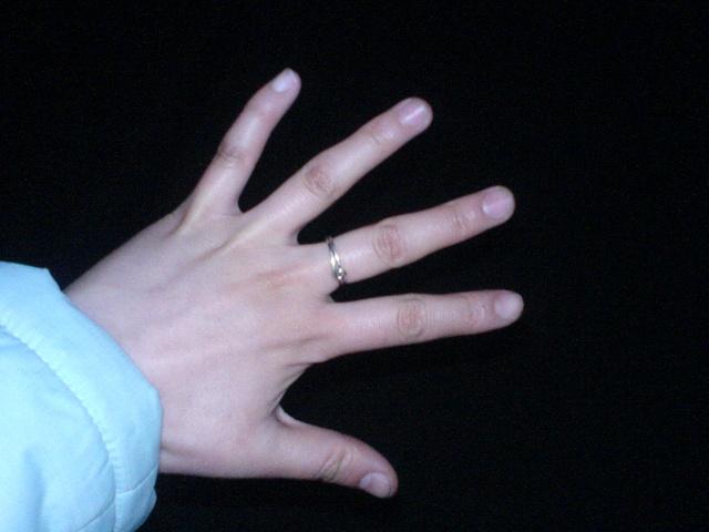 女生输液手背照片 打点滴的图片女生手 输液图片真实