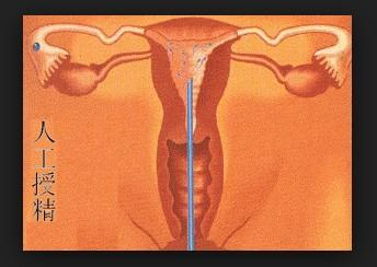 人工给女人受精图片 女人阴沟何士壮图片阴