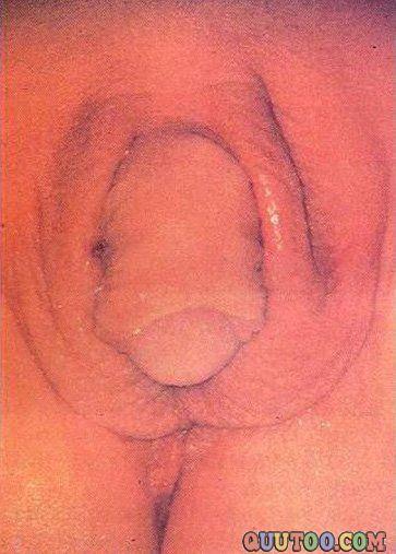 真正的阴阳人图片男女生殖器同时拥有(点击浏览下一张趣图)